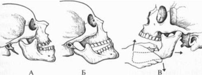 перелом суставного отростка нижней челюсти операция